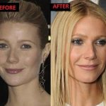 Gwyneth Paltrow before and after plastic surgery 2