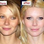 Gwyneth Paltrow before and after plastic surgery 3