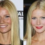 Gwyneth Paltrow before and after plastic surgery 4