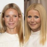 Gwyneth Paltrow before and after plastic surgery 7