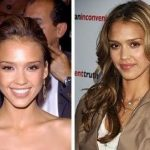 Jessica Alba before and after plastic surgery 11