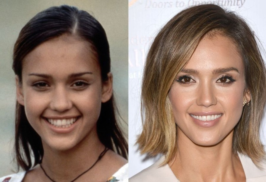 jessica-alba-before-and-after-plastic-surgery