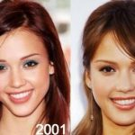 Jessica Alba before and after plastic surgery 31