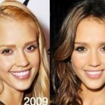 Jessica Alba before and after plastic surgery 32
