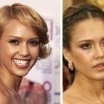 Jessica Alba before and after plastic surgery 39