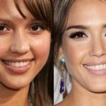 Jessica Alba before and after plastic surgery 51