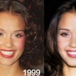 Jessica Alba before and after plastic surgery 57
