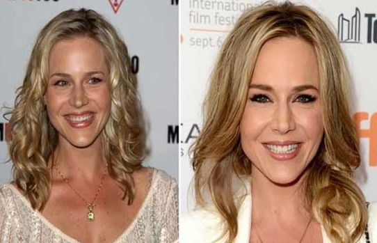 Julie Benz before and after plastic surgery