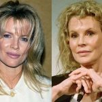 Kim Basinger before and after plastic surgery 10