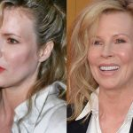 Kim Basinger before and after plastic surgery 39