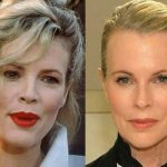 Kim Basinger before and after plastic surgery 6