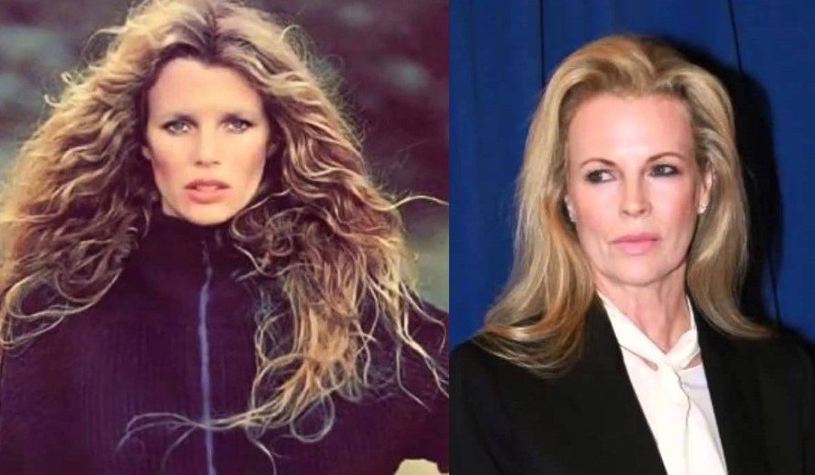 Kim Basinger before and after plastic surgery