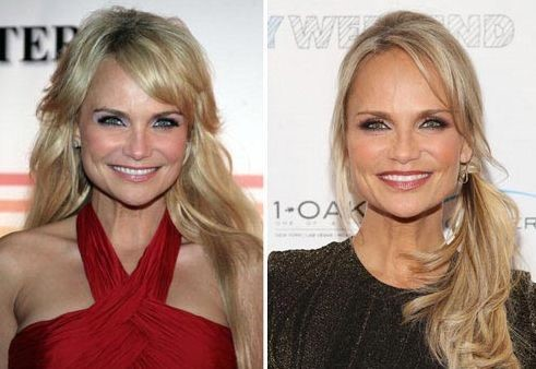 Kristin Chenoweth before and after plastic surgery