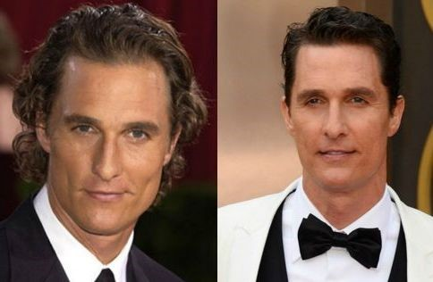 Matthew Mcconaughey before and after plastic surgery