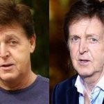 Paul Mccartney before and after plastic surgery 15