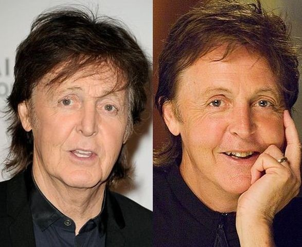 Paul Mccartney before and after plastic surgery