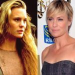 Robin Wright before and after plastic surgery 2