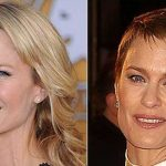 Robin Wright before and after plastic surgery 4
