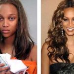 Tyra Banks before and after plastic surgery 23