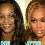 Tyra Banks before and after plastic surgery 24