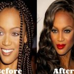 Tyra Banks before and after plastic surgery 25