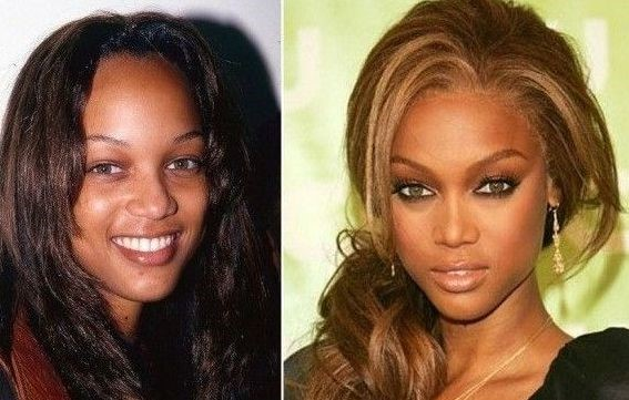 Tyra Banks before and after plastic surgery
