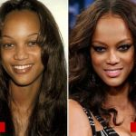 Tyra Banks plastic surgery before and after 3