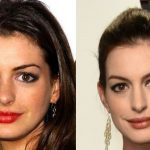 Anne Hathaway before and after plastic surgery 22