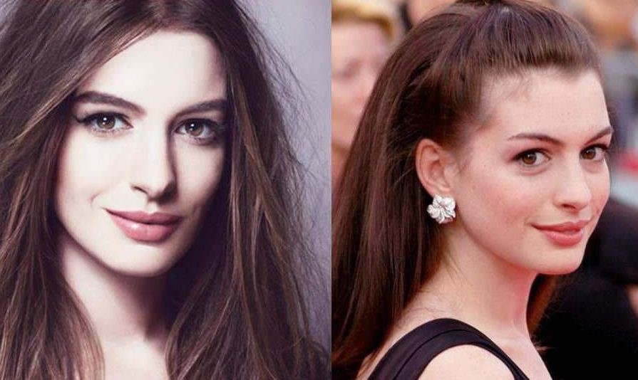 Anne Hathaway before and after plastic surgery