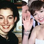 Anne Hathaway before and after plastic surgery 39