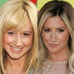 Ashley Tisdale before and after plastic surgery 20