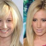 Ashley Tisdale before and after plastic surgery 9