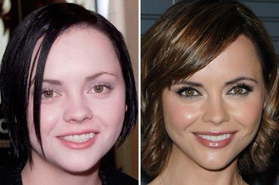 Christina Ricci before and after plastic surgery