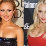 Hayden Panettiere before and after plastic surgery 10