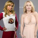Hayden Panettiere before and after plastic surgery 13