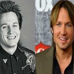 Keith Urban before and after plastic surgery 1