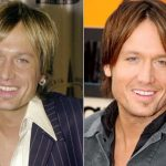 Keith Urban before and after plastic surgery 12