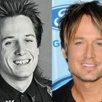 Keith Urban before and after plastic surgery 2