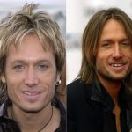 Keith Urban before and after plastic surgery 22