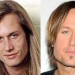 Keith Urban before and after plastic surgery 7