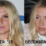 Kesha before and after plastic surgery 27