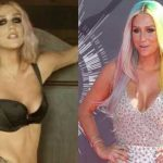 Kesha before and after plastic surgery 31
