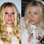 Kesha before and after plastic surgery 44