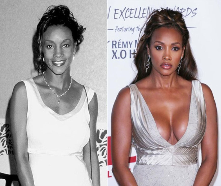 Vivica A Fox before and after plastic surgery