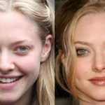 Amanda Seyfried before and after plastic surgery (18)