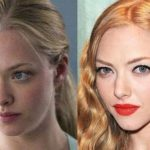 Amanda Seyfried before and after plastic surgery (19)