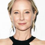 Anne Heche plastic surgery (01)