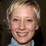 Anne Heche plastic surgery (1)