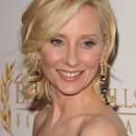Anne Heche plastic surgery (11)