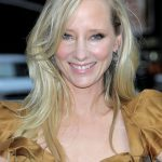 Anne Heche plastic surgery (12)